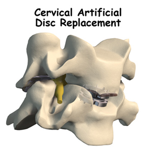 Artificial Cervical Disc Replacement
